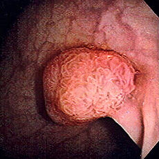 Polyps containing mucoid plaque and parasites