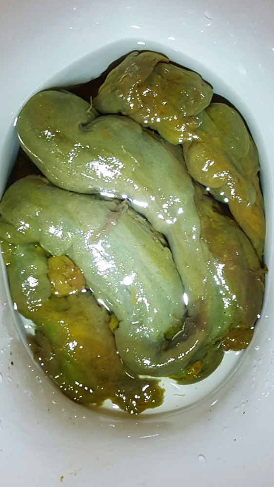 mucoid plaque removed on a cleanse